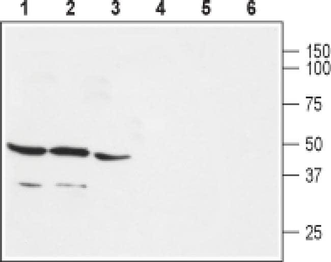 GPR30 Antibody in Western Blot (WB)