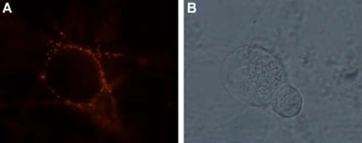 GRIK1 (extracellular) Antibody in Immunocytochemistry (ICC)