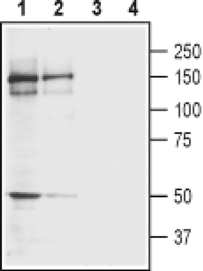 GRIK4 (extracellular) Antibody in Western Blot (WB)
