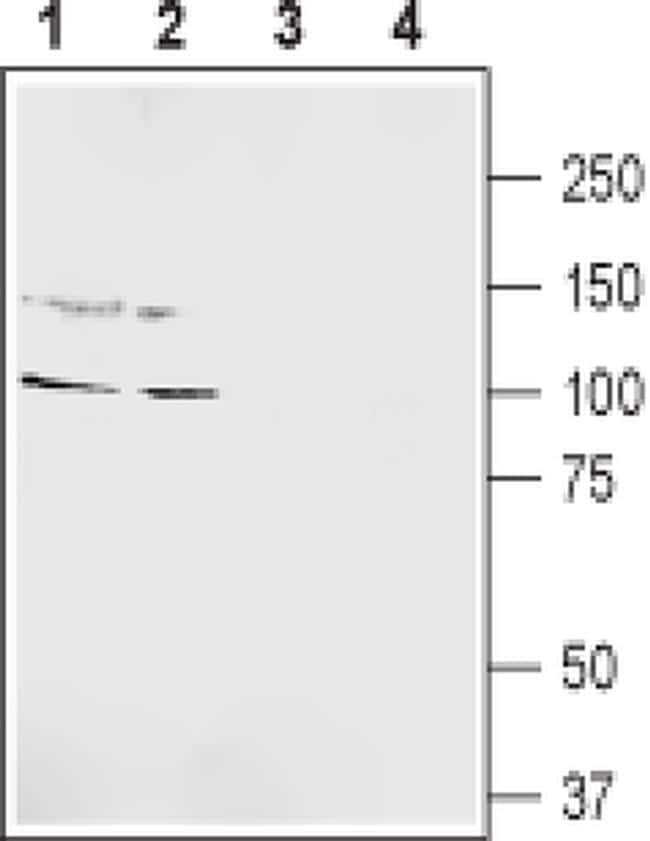 GRIK5 (extracellular) Antibody in Western Blot (WB)