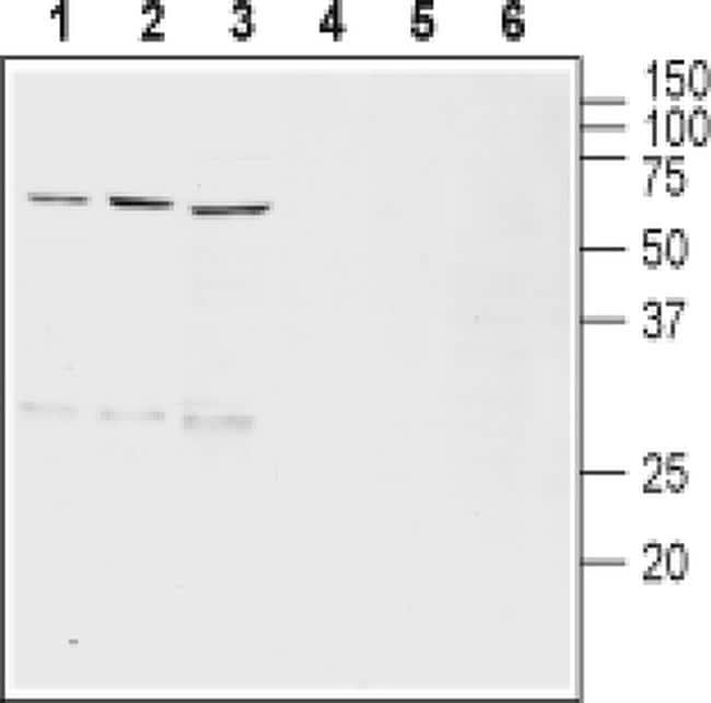 VMAT2 Antibody in Western Blot (WB)
