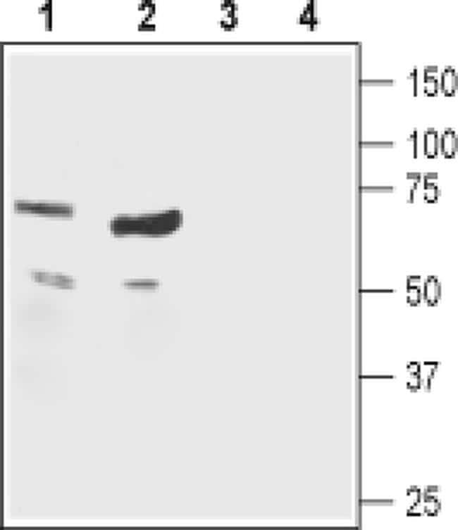CHRNB1 (extracellular) Antibody in Western Blot (WB)