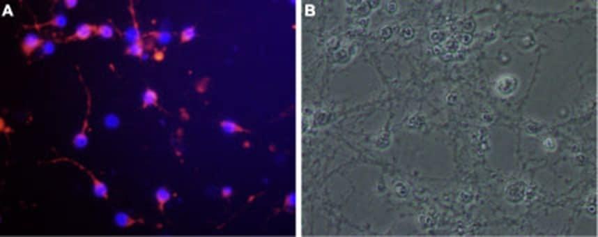 Nogo Receptor (extracellular) Antibody in Immunocytochemistry (ICC)