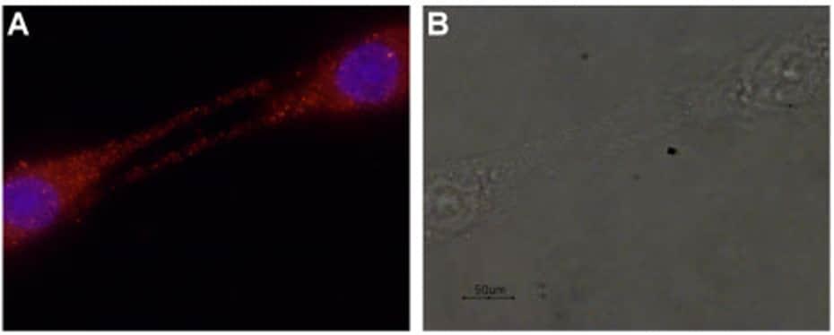 GDNF Antibody in Immunocytochemistry (ICC)