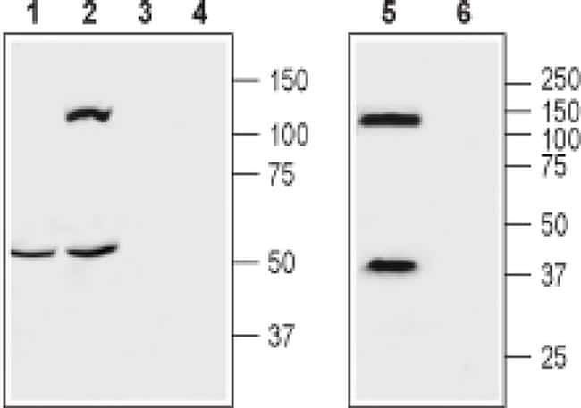 OPRK1 (extracellular) Antibody in Western Blot (WB)