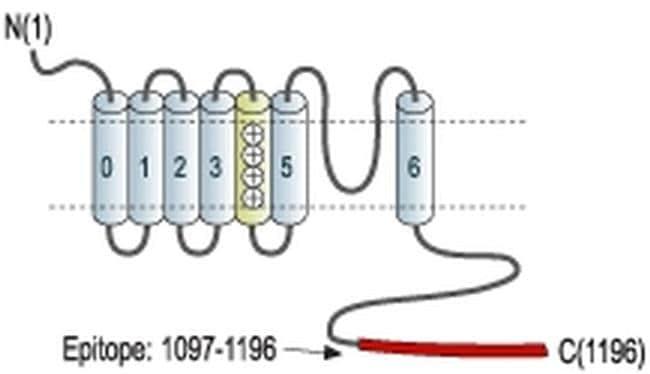 KCNMA1 Antibody