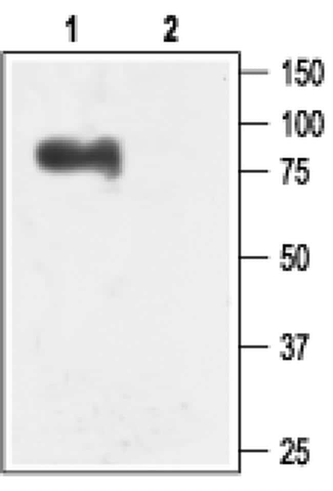 KCNN3 Antibody in Western Blot (WB)