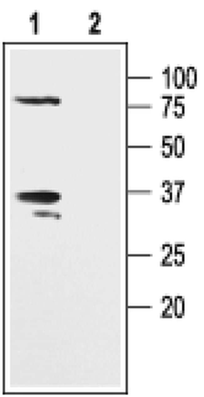 KVbeta2 (KCNAB2) Antibody in Western Blot (WB)