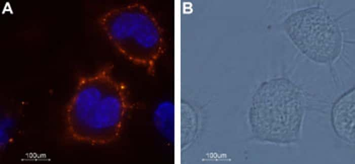 KCNK18 (extracellular) Antibody in Immunocytochemistry (ICC)