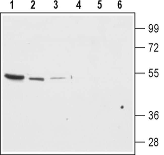 Kir7.1 (KCNJ13) (extracellular) Antibody in Western Blot (WB)