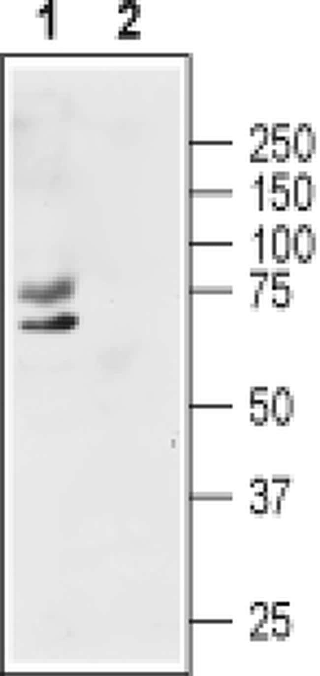 KV1.1 (KCNA1) (extracellular) Antibody in Western Blot (WB)