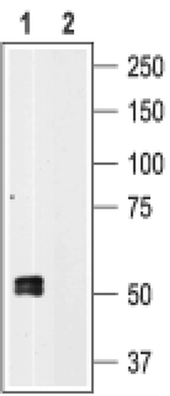 P2X1 Antibody in Western Blot (WB)