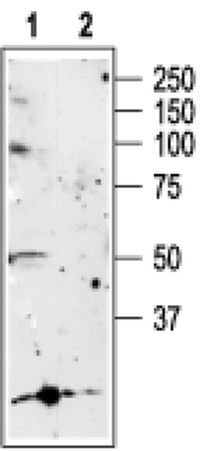 P2X5 Antibody in Western Blot (WB)
