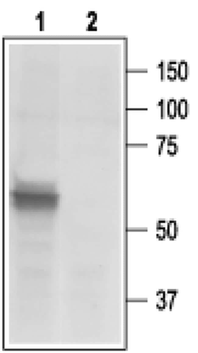 P2X3 Antibody in Western Blot (WB)