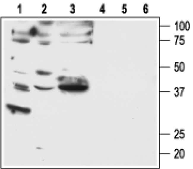 PAR2 Antibody in Western Blot (WB)