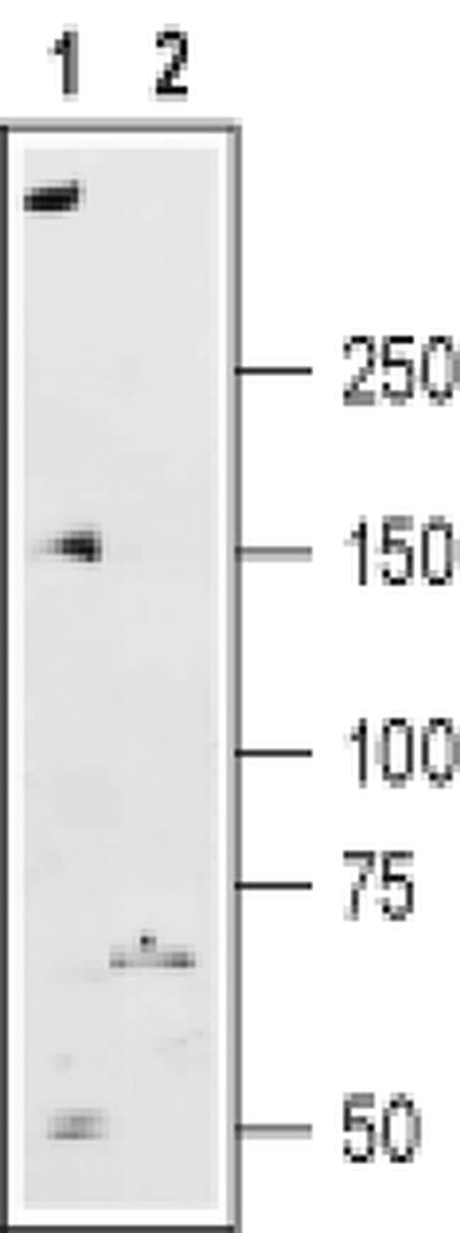 RyR2 Antibody in Western Blot (WB)