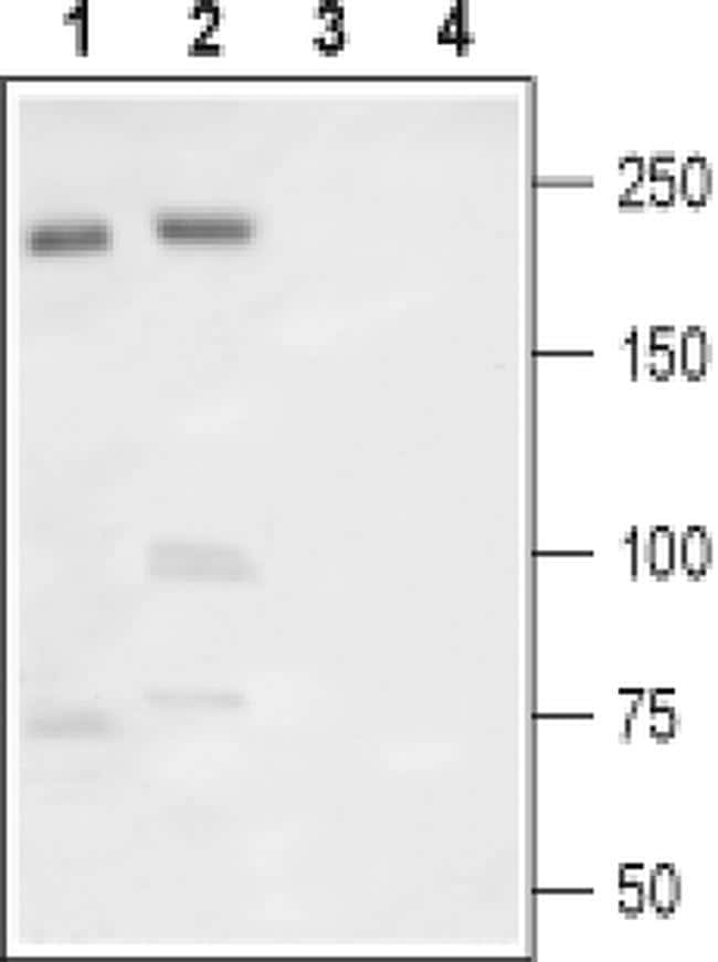 SCN9A (extracellular) Antibody in Western Blot (WB)