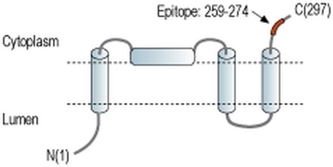 TMEM38A Antibody