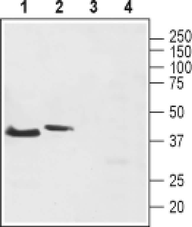 TACR2 Antibody in Western Blot (WB)
