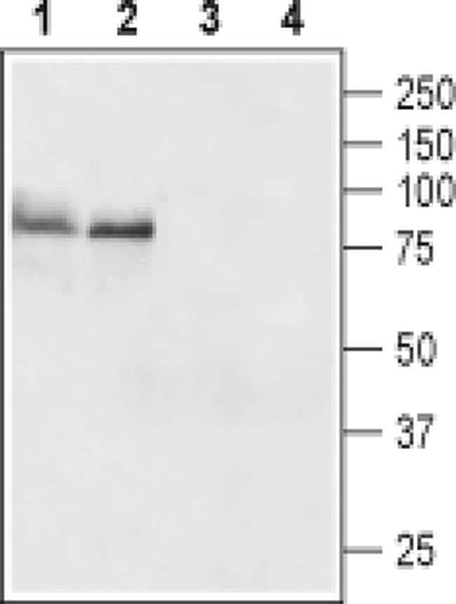 TSH Receptor (extracellular) Antibody in Western Blot (WB)