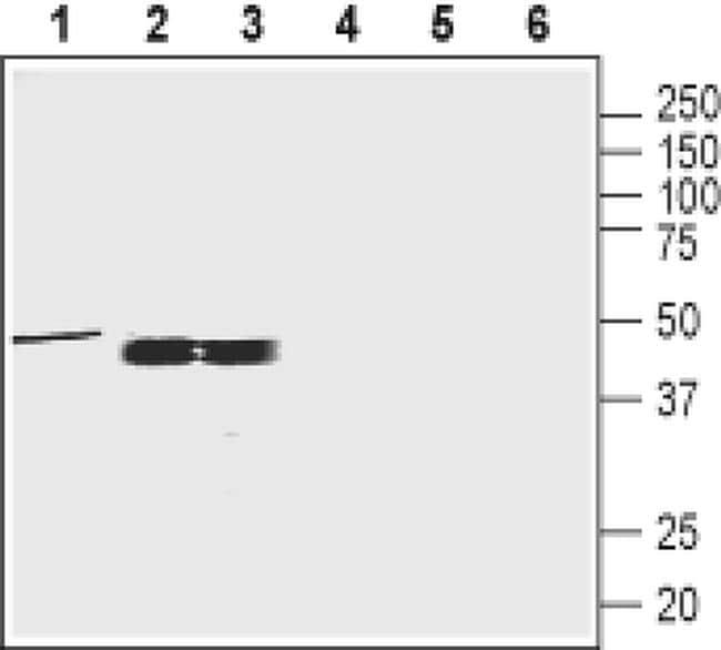 Oxytocin Receptor Antibody in Western Blot (WB)