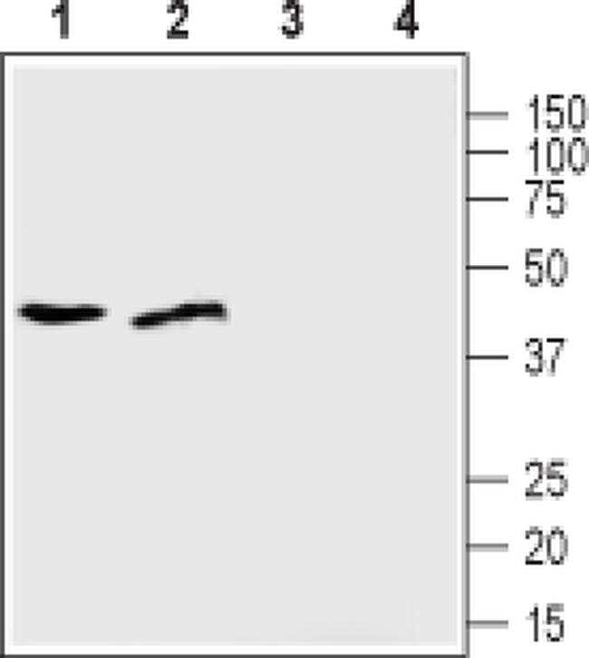 ZIP1 (extracellular) Antibody in Western Blot (WB)