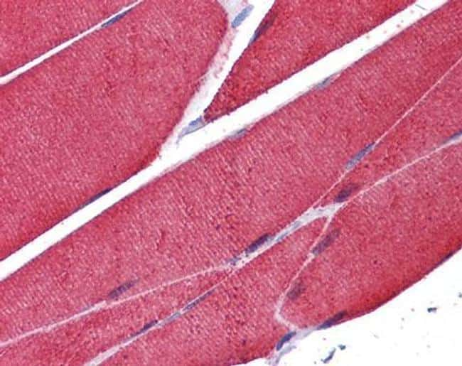 Skeletal Muscle Actin Antibody in Immunohistochemistry (Paraffin) (IHC (P))