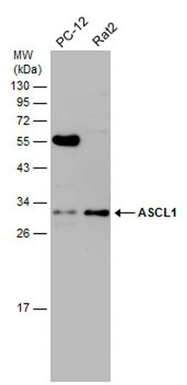ASCL1 Antibody in Western Blot (WB)