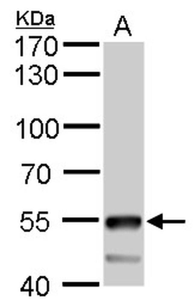 ATP6V1B2 Antibody in Western Blot (WB)