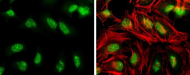 Phospho-ATR (Thr1989) Antibody in Immunocytochemistry (ICC)
