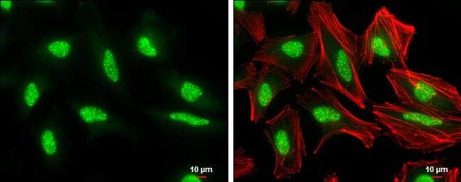 Phospho-ATR (Thr1989) Antibody in Immunofluorescence (IF)