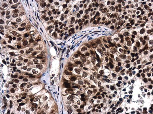 Phospho-ATR (Thr1989) Antibody in Immunohistochemistry (Paraffin) (IHC (P))