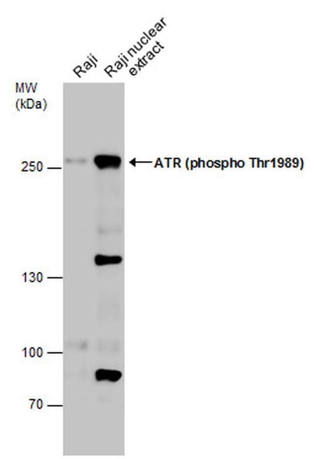 Phospho-ATR (Thr1989) Antibody in Western Blot (WB)