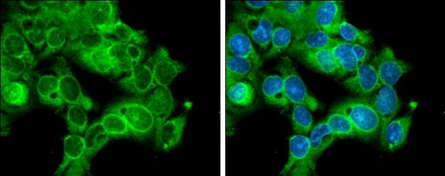CDK1 Antibody in Immunocytochemistry (ICC/IF)