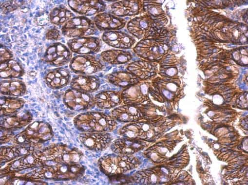 beta Catenin Antibody in Immunohistochemistry (Paraffin) (IHC (P))