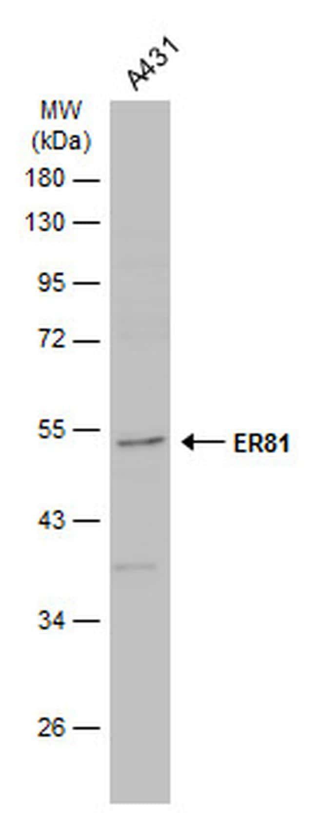 ETV1 Antibody in Western Blot (WB)
