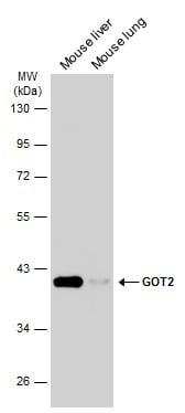 GOT2 Antibody in Western Blot (WB)
