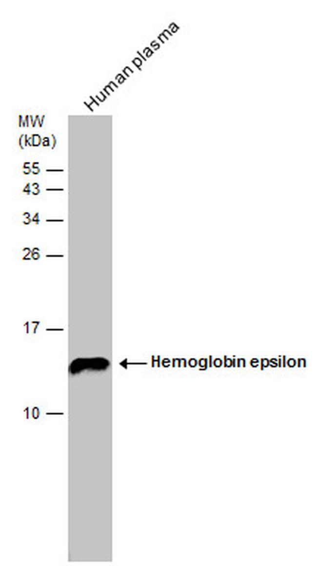 HBE1 Antibody in Western Blot (WB)
