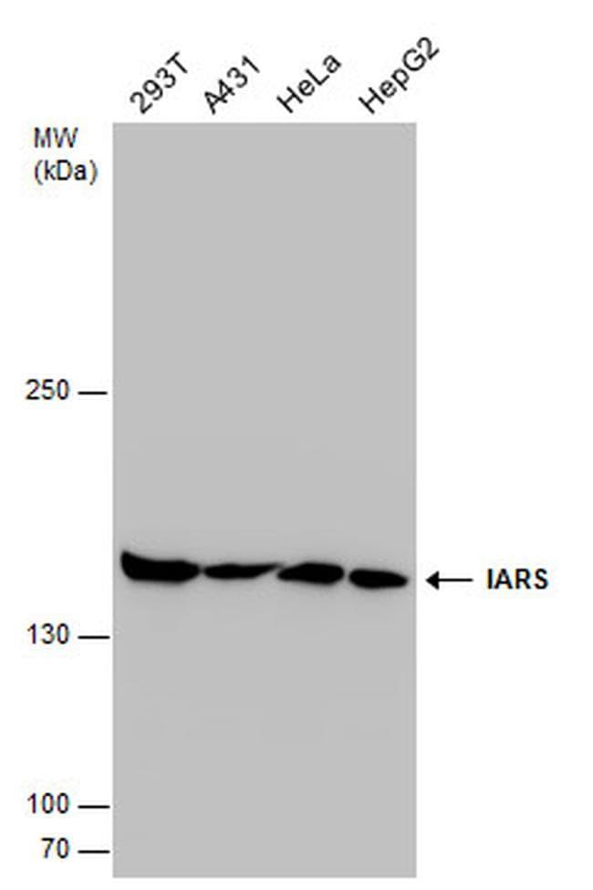 IARS Antibody in Western Blot (WB)