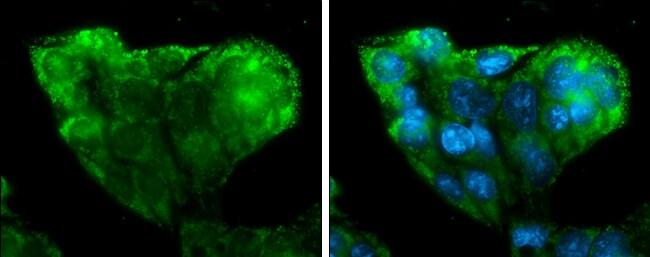 IGF2 Antibody in Immunofluorescence (IF)
