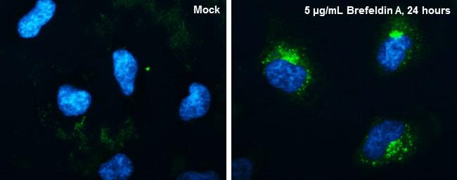 CYR61 Antibody in Immunofluorescence (IF)