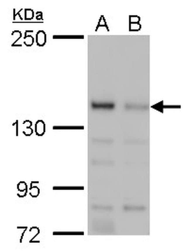 JARID2 Antibody in Western Blot (WB)