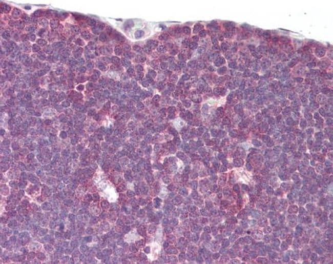 LCK Antibody in Immunohistochemistry (Paraffin) (IHC (P))