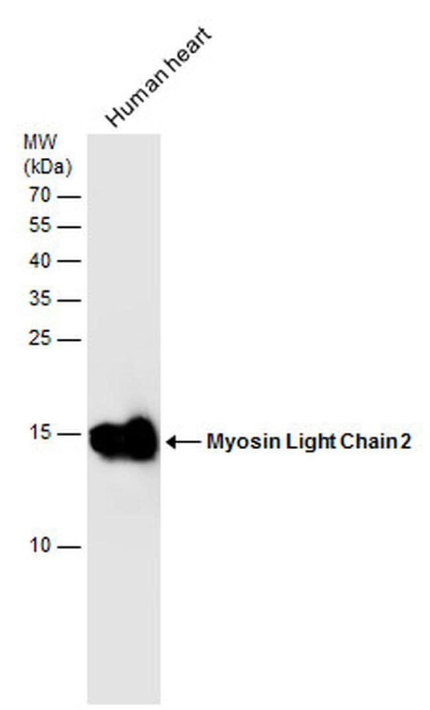 MYL2 Antibody in Western Blot (WB)
