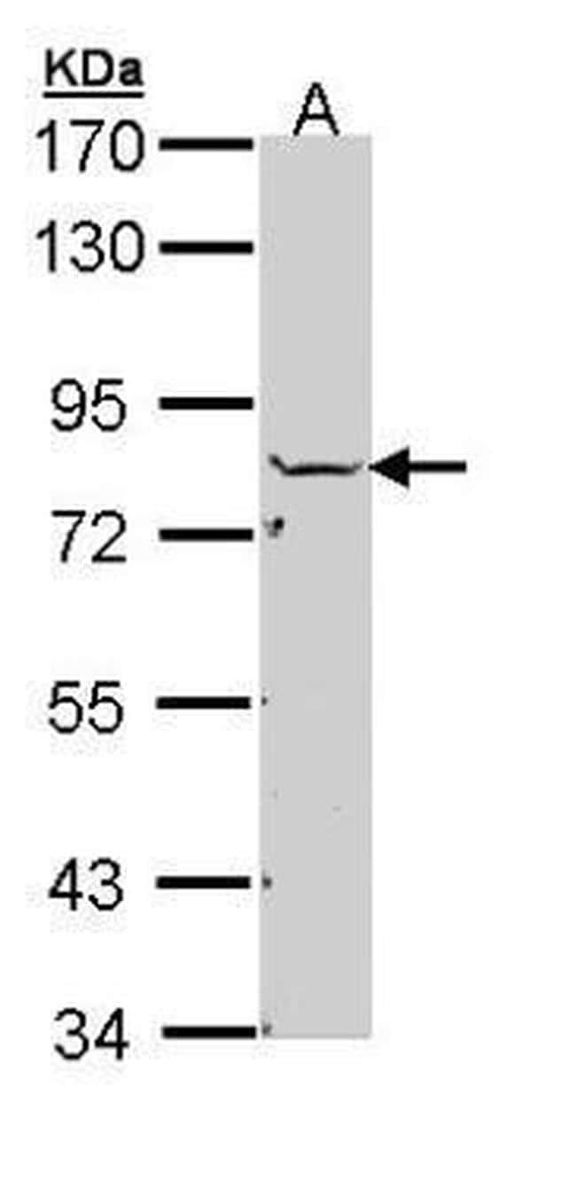 NSF Antibody in Western Blot (WB)
