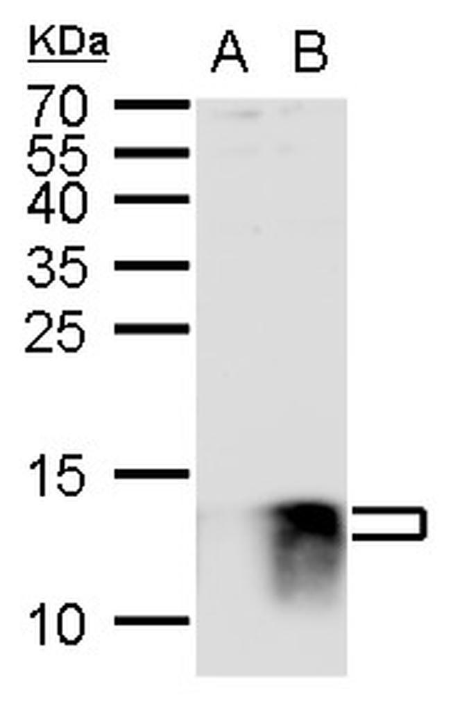 S100B Antibody in Western Blot (WB)