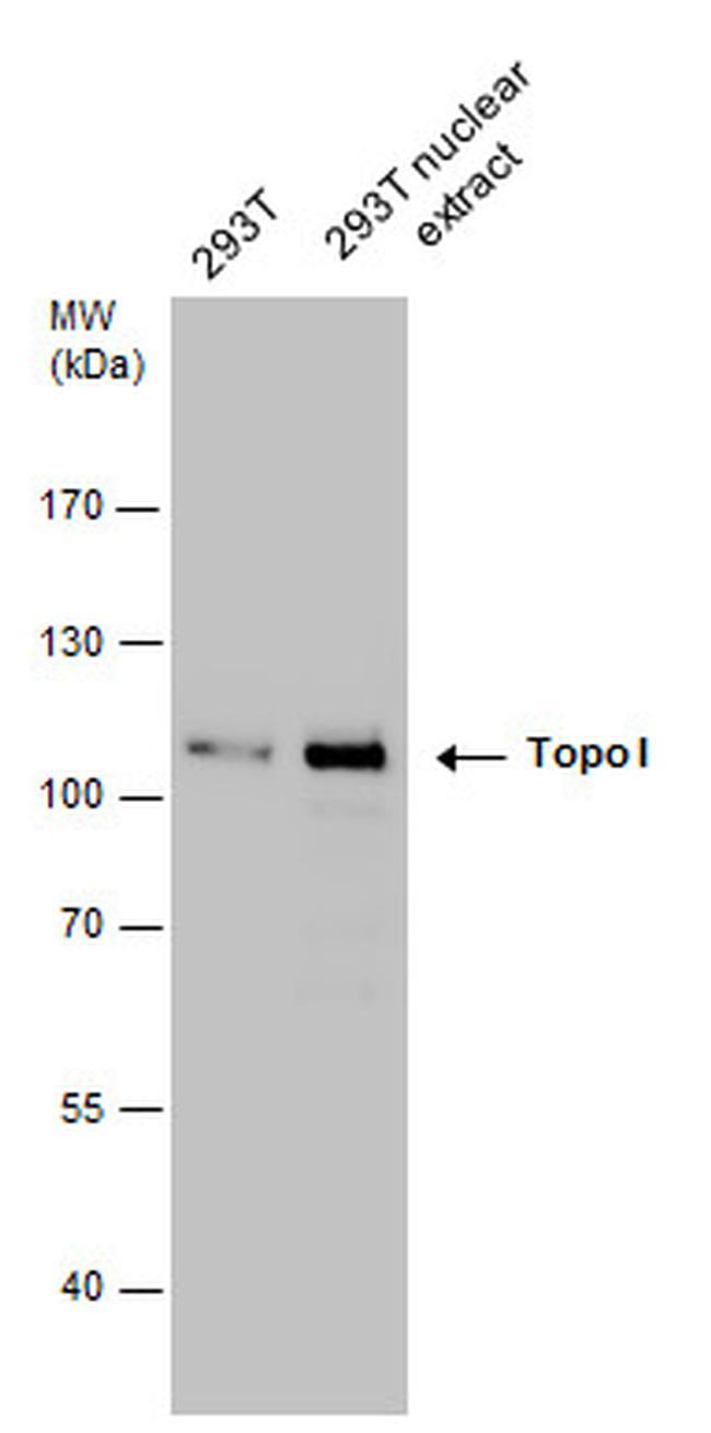 TOP1 Antibody in Western Blot (WB)
