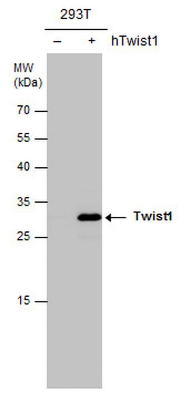 Twist1/Twist2 Antibody in Western Blot (WB)