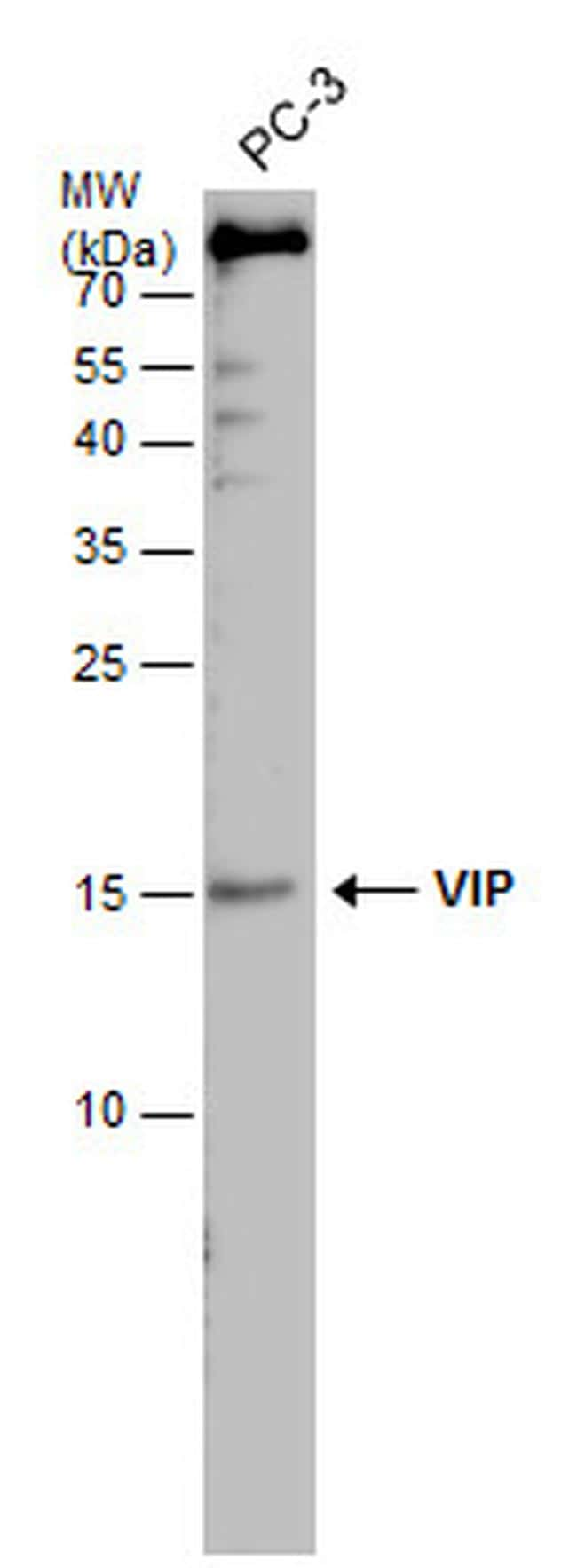 VIP Antibody in Western Blot (WB)