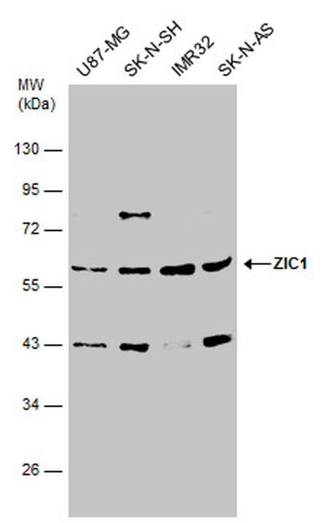 ZIC1 Antibody in Western Blot (WB)